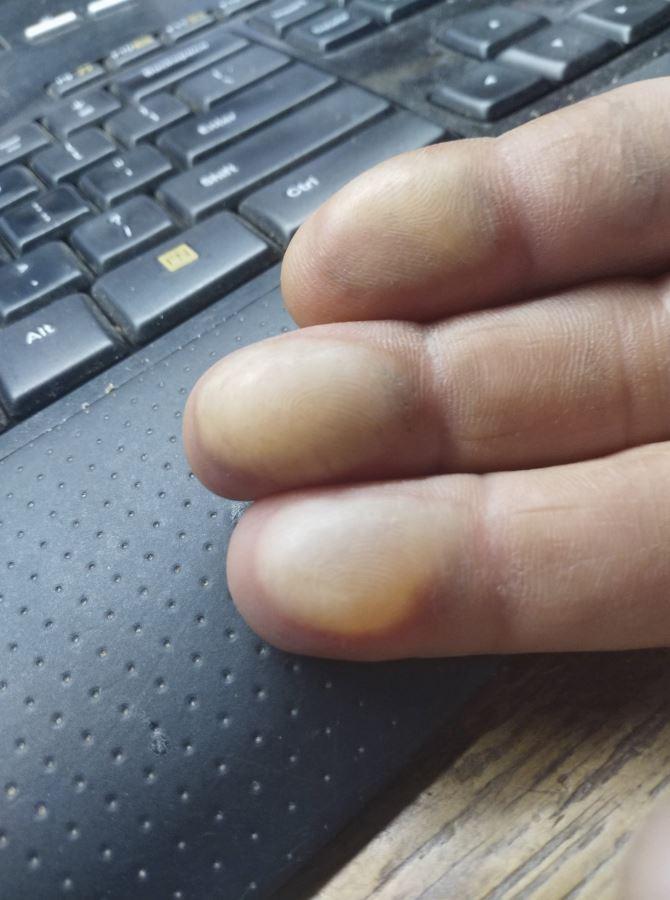 Finger burn 2.JPG