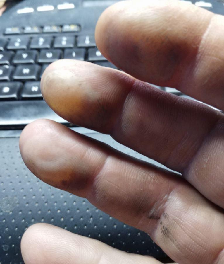 Hand finger burns.JPG